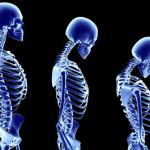 Πρωτοποριακή θεραπεία για οστεοπόρωση