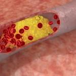 Σε καρκίνο του μαστού μπορεί να οδηγήσει η υψηλή χοληστερόλη